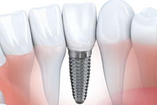Dental implants dentist in Toronto