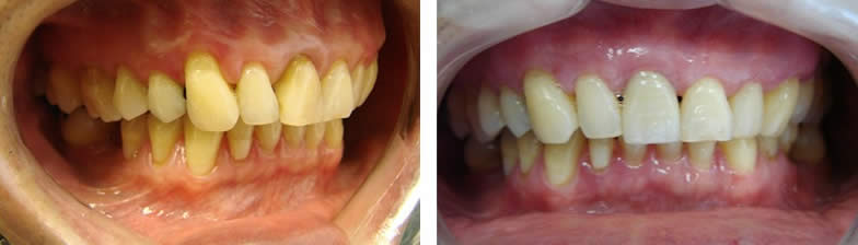 Gum grafting dentistry Toronto