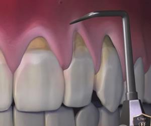 Pinhole Surgery Dentist In Toronto