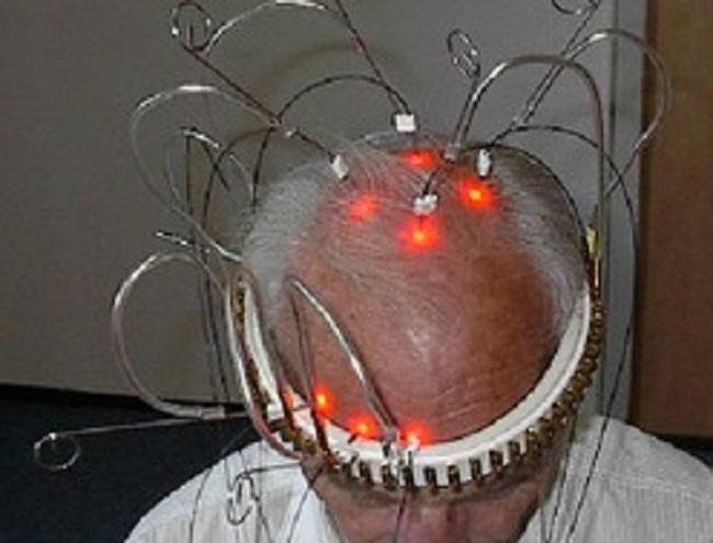 transcranial