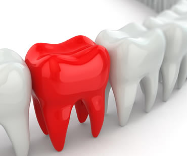 Emergency dentist in Toronto