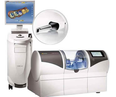 Cerec dentist in Toronto